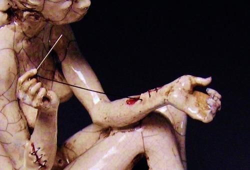 statue di cicatrici, le cicatrici sulla pelle